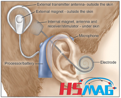 Cochlear-Implant-External-Diagram