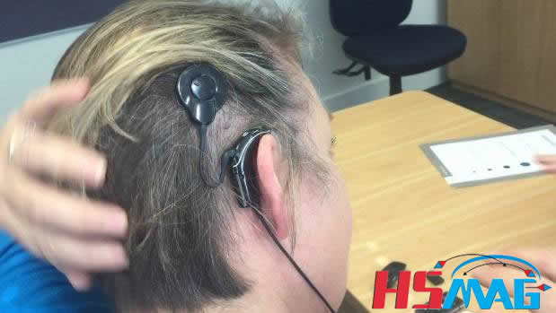 MRI and Cochlear Implants What to Know
